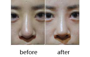 弯鼻整形前后对比
