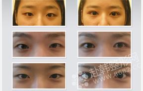 打结法双眼皮手术对比照