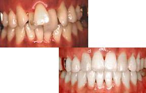 不规则牙齿矫正前后对比照