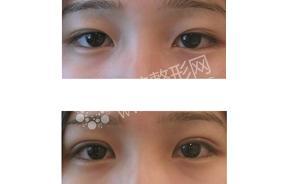 切开法双眼皮手术对比照