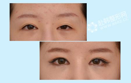 双眼皮修复+开眼角整形前后对比照