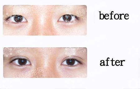 割双眼皮哪种方法好,术后会留疤吗