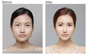 脸部轮廓整形对比照片