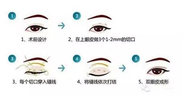 韩式三点双眼皮示意图