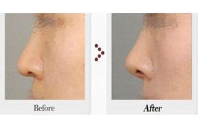 隆鼻整形前后对比