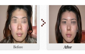 面部自体脂肪移植前后对比