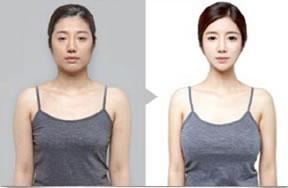 自体脂肪移植对比照片