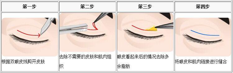 割双眼皮的过程
