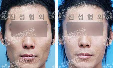 男性面部轮廓手术