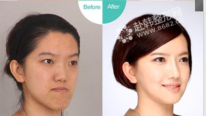 脸非对称和倒关牙矫正前后对比照
