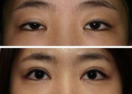 眼部修复手术后对比