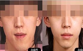 颜面不对称手术对比照片