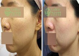 Smart PRP MYCELL童颜皮肤再生术
