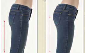 自体干细胞脂肪移植丰臀前后对比照片