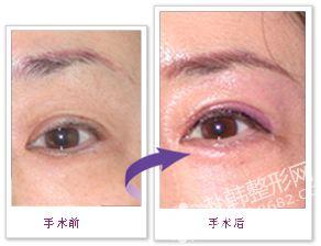 眼袋修复手术