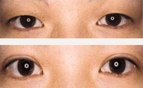 韩式重睑术前后对比照片