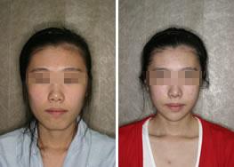 下颌整形手术后对比