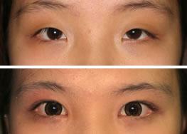 眼部整形手术对比