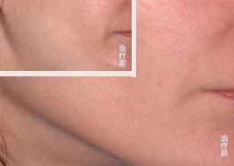 UL  THERA 下颌术