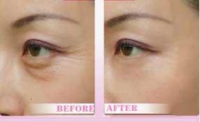 肉毒素除眼纹前后对比
