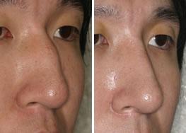 驼峰鼻整形后对比