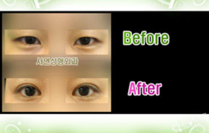 双眼皮手术对比照