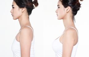 面部轮廓+颧骨+脂肪移植+胸部