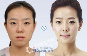 反颌整形前后对比照片