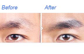 眉毛移植对比照