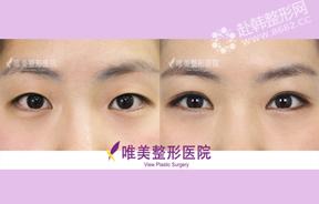 双眼皮手术前后对比照
