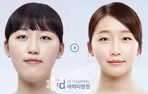 反颌矫正前后对比照片