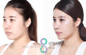 眼修复+鼻部+脂肪移植+贵族手术