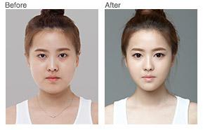 纳米V-Line脸部吸脂对比照