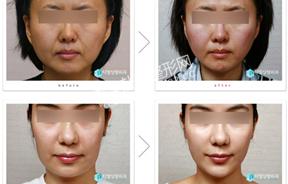 面部提升前后对比照片