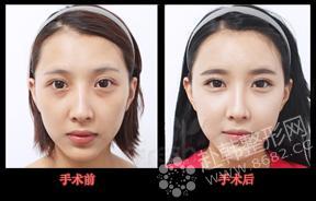 面部脂肪移植对比照
