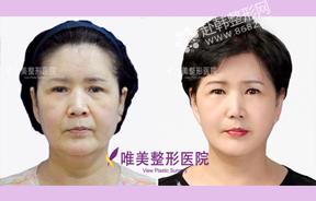 面部提升除皱前后对比照