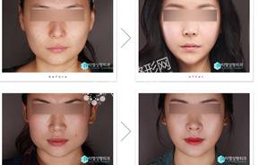 下颌角整形前后对比照片