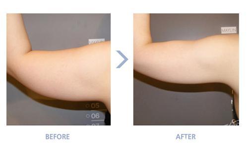 fanta-plus(高周波溶解脂肪)手臂溶脂