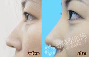 鼻部整形对比照