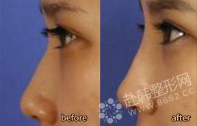 眼鼻整形对比照