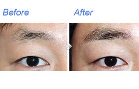 眉毛种植对比照